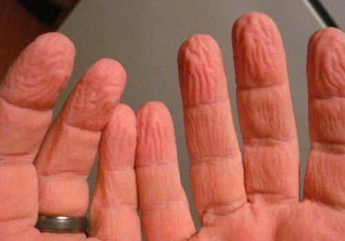 Suda kalan parmakların buruşma nedeni ortaya çıktı!