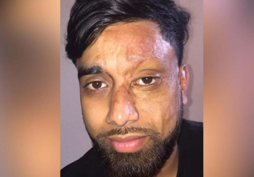 Acid attack victim: they had to cover mirrors in hospital so I couldn't see myself