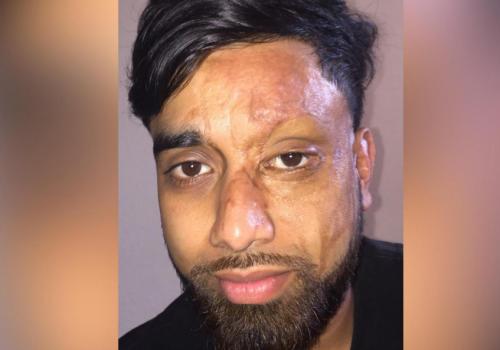 Asit saldırısı kurbanı yüzünü gösterdi