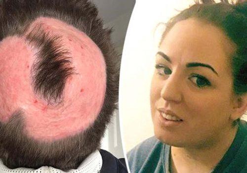 Saç rengini değiştirmek isteyen kadının kafa derisi yandı