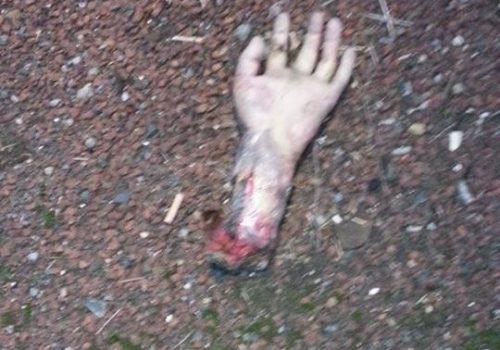 İngiltere'de bulunan kopuk elin sırrı ortaya çıktı