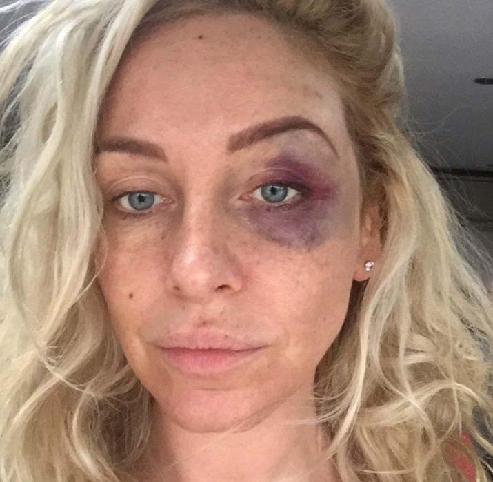 Ünlü televizyon yıldızı Josie Gibson, saldırıya uğradı