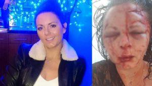 Marmaris'te İngiliz turisti öldüresiye dövmüştü: Hafifçe itmiş