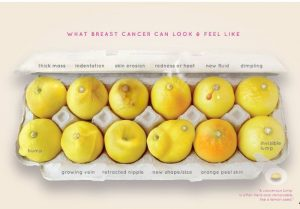 İngiltere'de meme kanserine limonlu teşhis