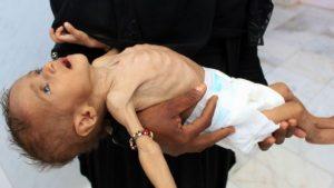 Yemen krizi: '85 bin çocuk açlıktan öldü'