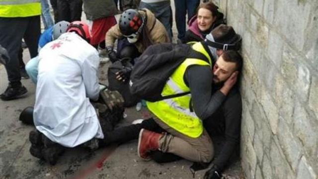 Paris sokakları karıştı! 1 kişinin eli koptu