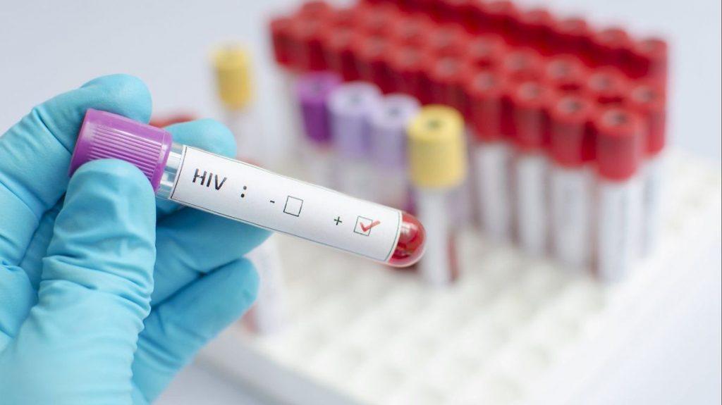 AIDS'le mücadelede çığır açan araştırma: Tedavi virüsün bulaşmasını engelledi
