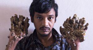 Bangladeşli 'ağaç adam' acısının son bulması için ellerinin kesilmesini istedi