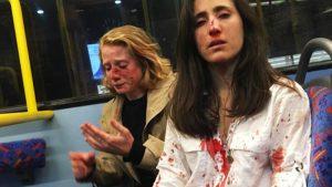 Öpüşmeleri istenen lezbiyen çift 4 erkek tarafından dövüldü