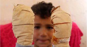 7 yaşındaki çocuğun ellerine kolonya döküp yaktı