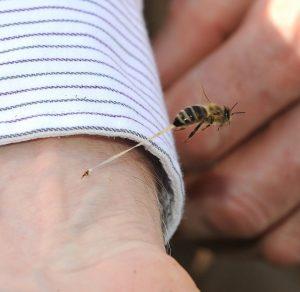 Arı sokmasına dikkat