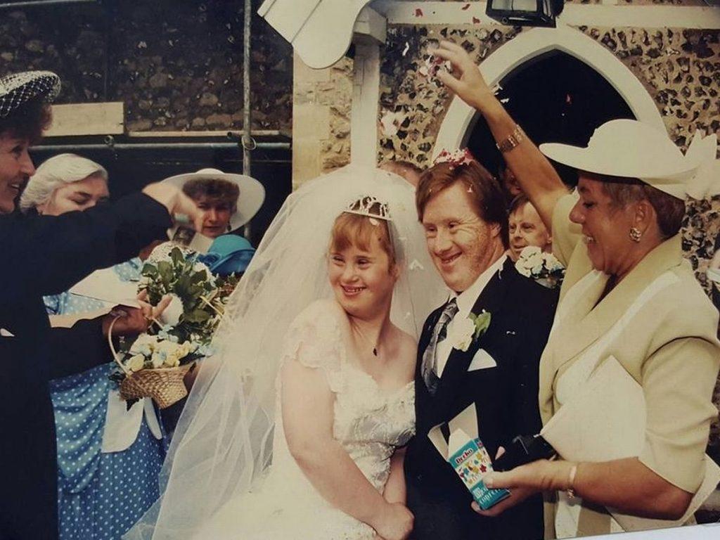 İngiltere'nin ilk Down Sendromlu çifti ayrılığın eşiğine geldi