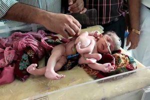 Hindistan'da dört bacaklı, üç kollu kız bebek dünyaya geldi