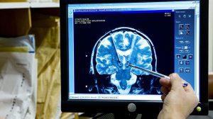 Çin'de Alzheimer için geliştirilen ilaca onay çıktı
