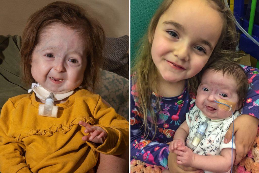 Hastalığı yüzünden yaşlı görünen 2 yaşındaki çocuğa babası 'babaanne' diyor