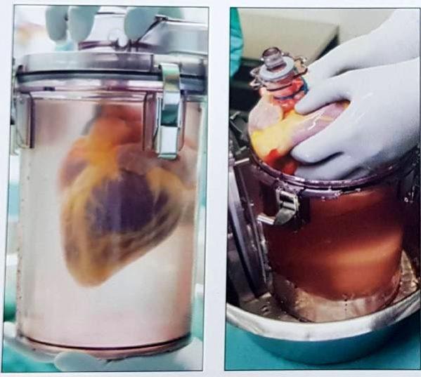 Duran kalbi nakil bekleyen hastada kullanmak mümkün