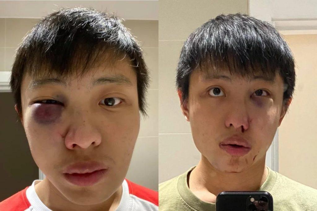 """""""Senin koronavirüsünü ülkemde istemiyorum"""" deyip Singapurlu öğrenciyi dövdüler"""