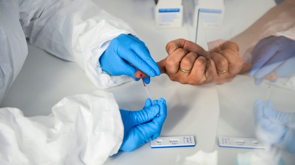Expert warns: Unverified antibody tests risk spread of COVID-19