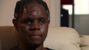 İngiltere'de ırkçı saldırıya uğrayan sağlık çalışanı: 'Hala nefes alabildiğim için mutluyum'