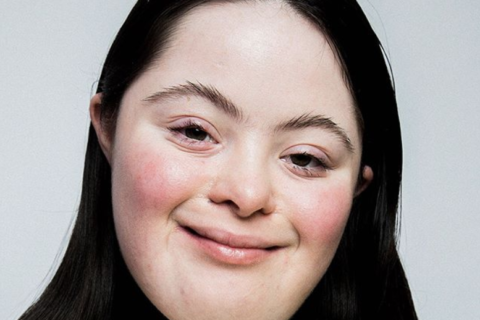 Down sendromlu ilk model Vogue dergisinde kapak yüzü