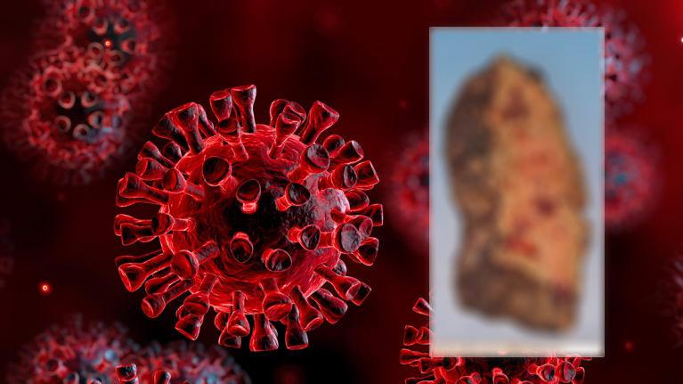 Korona virüsün akciğerlere verdiği hasar ilk kez görüntülendi