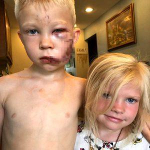 ABD'nin minik kahramanı: Kız kardeşini köpek saldırısından kurtarırken yaralandı