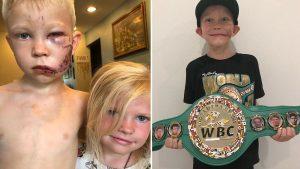 """Kardeşini köpekten kurtaran minik Walker, """"Dünya Şampiyonu"""" ilan edildi"""