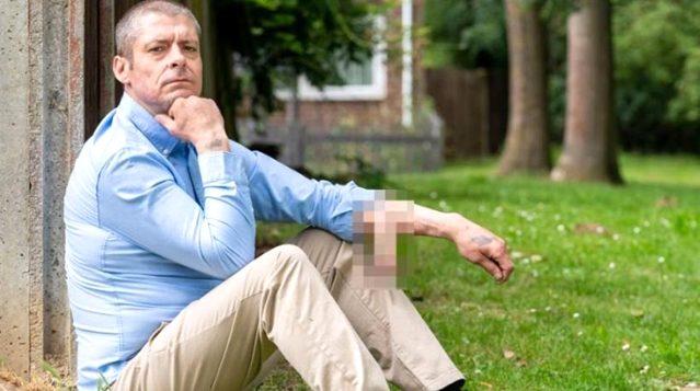 İngiltere'de bir adam 4 yıldır kolunda cinsel organıyla yaşıyor