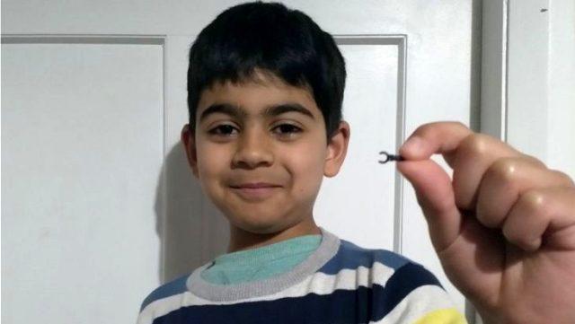 Burnuna soktuğu Lego parçası, 2 sene sonra düştü