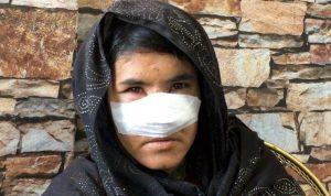Kocası tarafından burnu kesilen Afgan kadını: Ölüm korkusuyla yıllar geçti