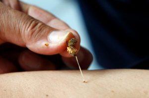 Avusturalyalı bilim insanlarından meme kanserine karşı 'bal arısı zehiri'