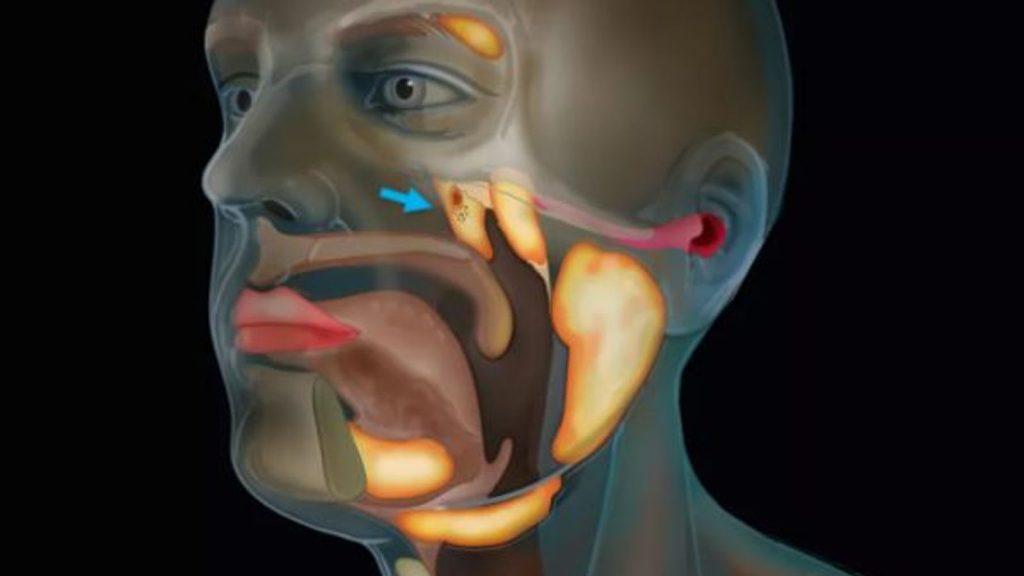 Bilim adamları prostat kanseri üzerine araştırmalar yaparken boğazda yeni bir organ keşfettiler.