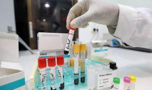 Güney Kore koronavirüs ile mevsimsel gribi aynı anda tespit eden testi onayladı