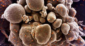 Koronavirüs mutasyonunun görüldüğü ülkelerin sayısı 36 oldu