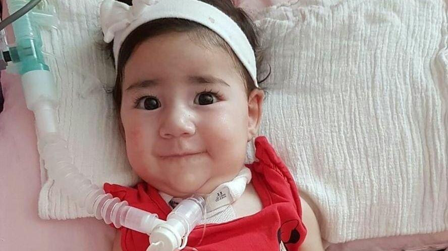 Güney Kıbrıs Asya bebeğin tedavisini üstlenecek