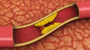 Kolesterol: İngiltere'de yeni bir ilaçla '10 yılda 30 bine yakın ölüm önlenebilir'