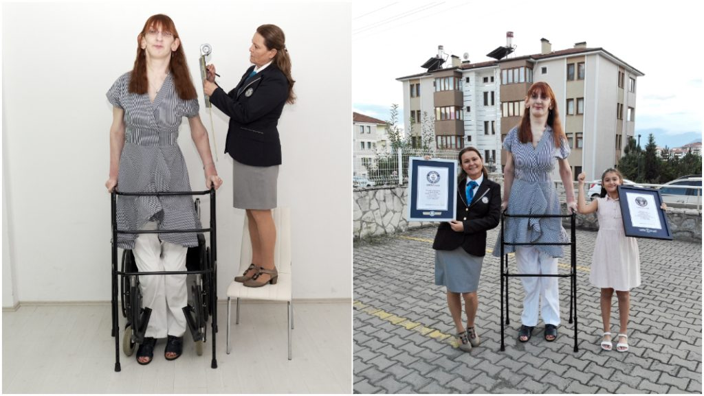 Turkish woman sets record for tallest female in the world